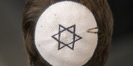Präsident des Zentralrats der Juden: Besser nicht mit Kippa auf die Straße