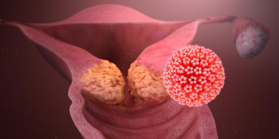 hpv virus wie ubertragbar gyógyszerek az enterobiosis kezelésére, hová menjen